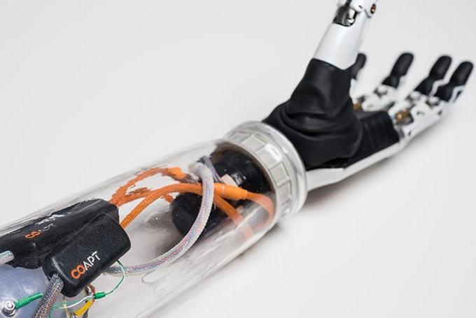 Как работает бионический протез