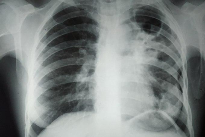 Описание цирротического туберкулеза легких