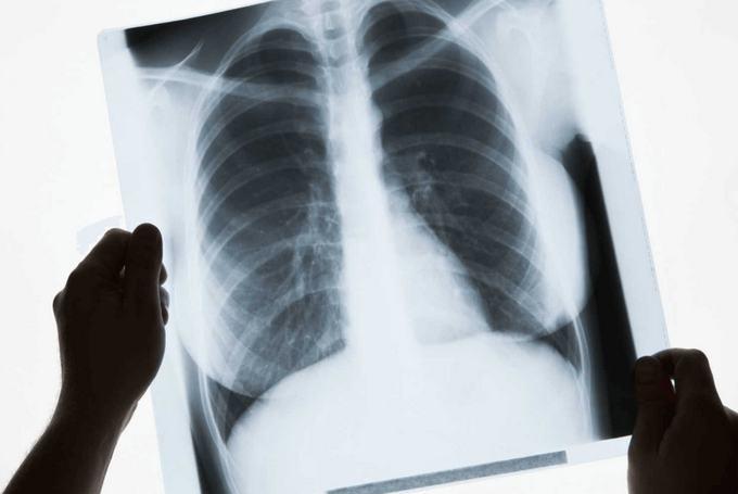 Эндометриоз легких - лечение