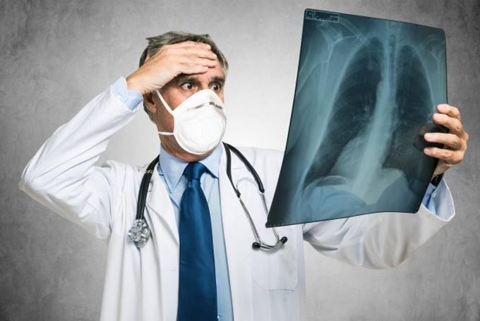 Эозинофильная пневмония - диагностика