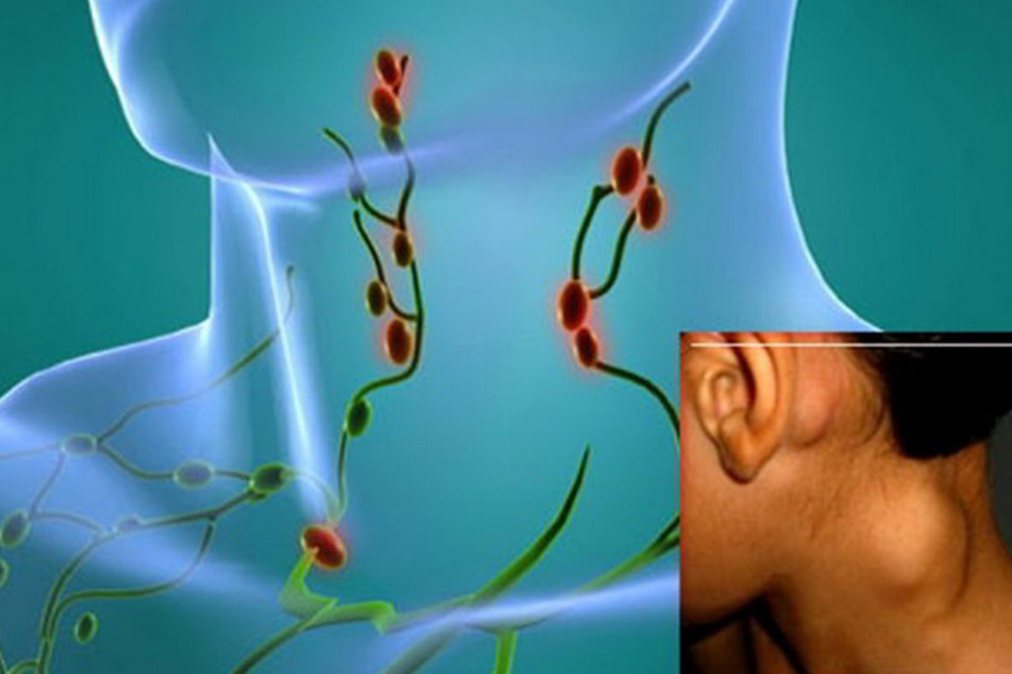 Симптомы и диагностика лимфомы средостения