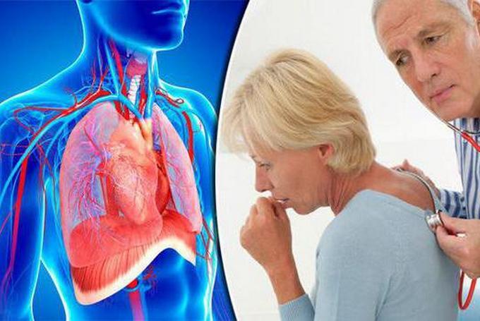 Параканкрозная пневмония: лечение