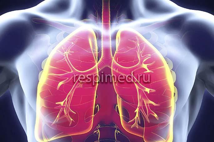 Как лечить параканкрозную пневмонию