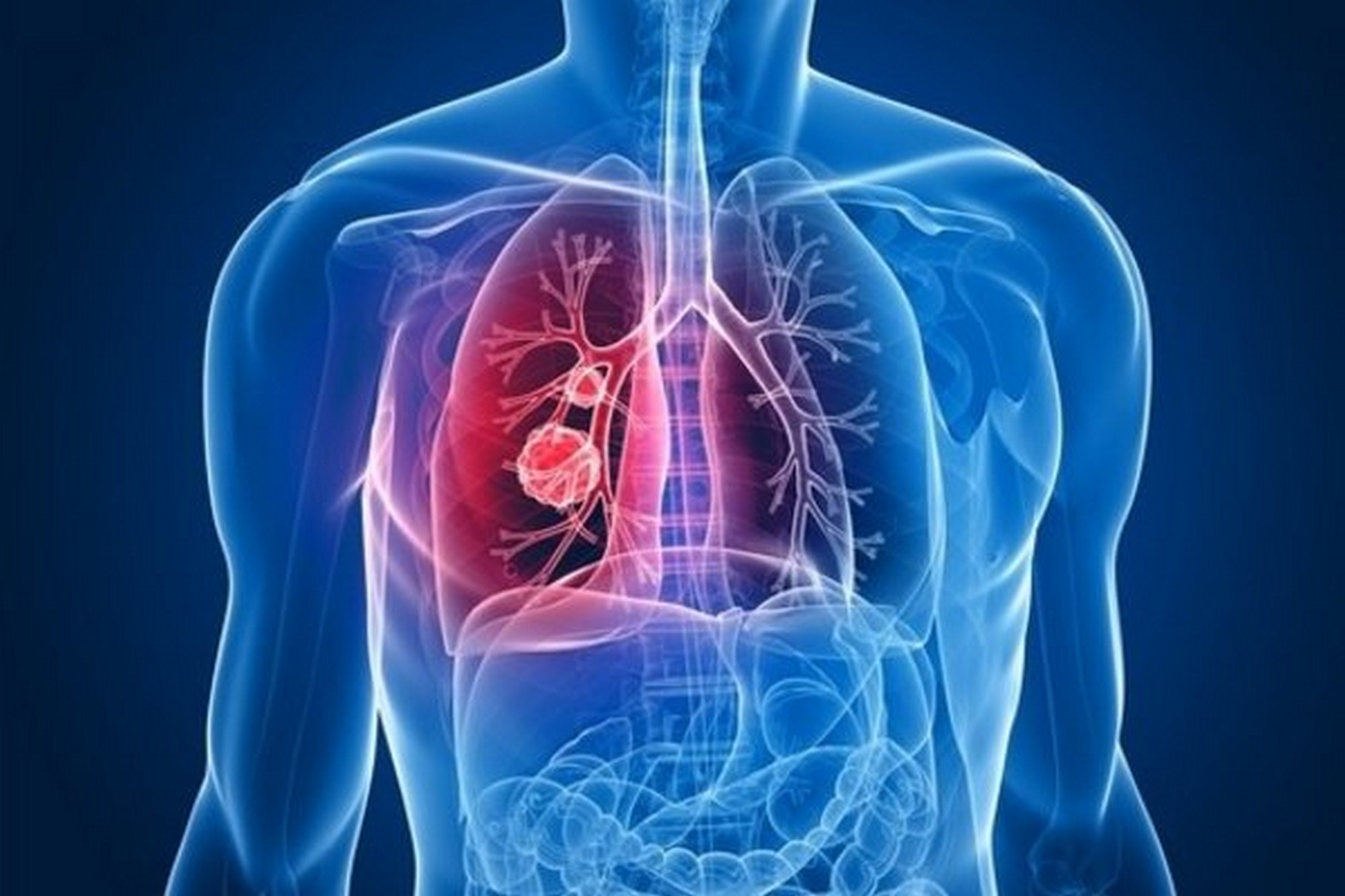 Симптомы, диагностика и лечение рака бронха
