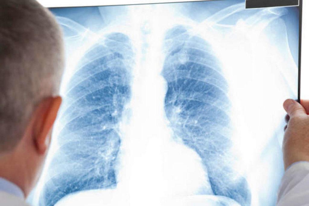 Диагностирование сифилиса легких