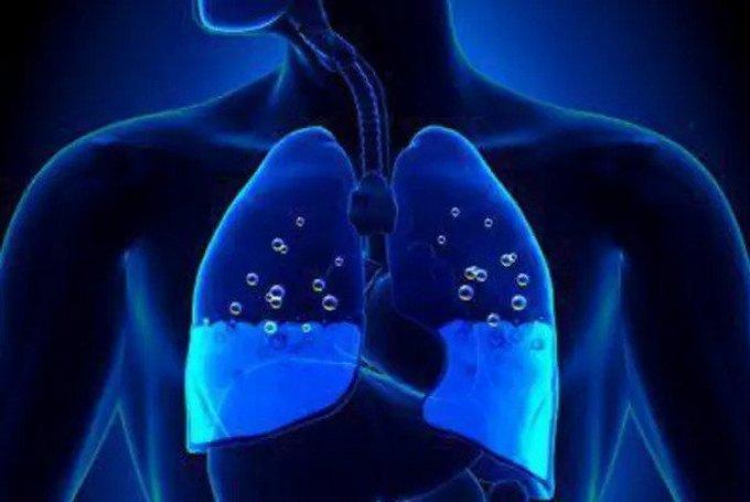 Токсический отек легких - что такое