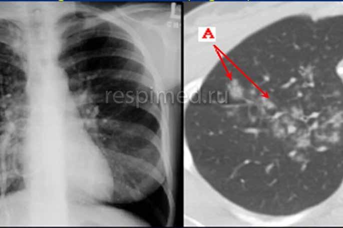 Особенности микроплазменной пневмонии