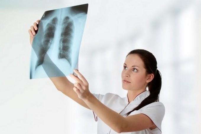 Методы диагностики опухолей диафрагмы