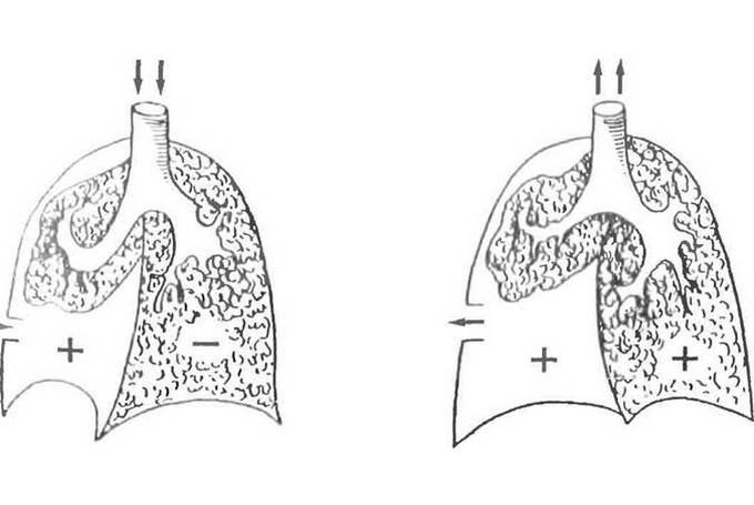 Диагностирование открытого пневмоторакса