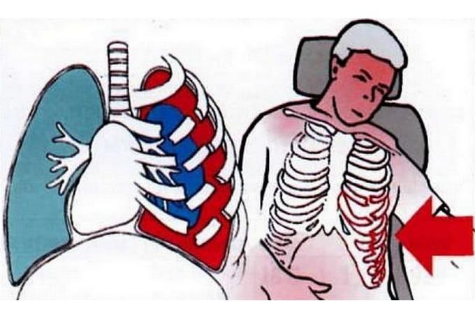 Симптомы и описание открытого пневмоторакса
