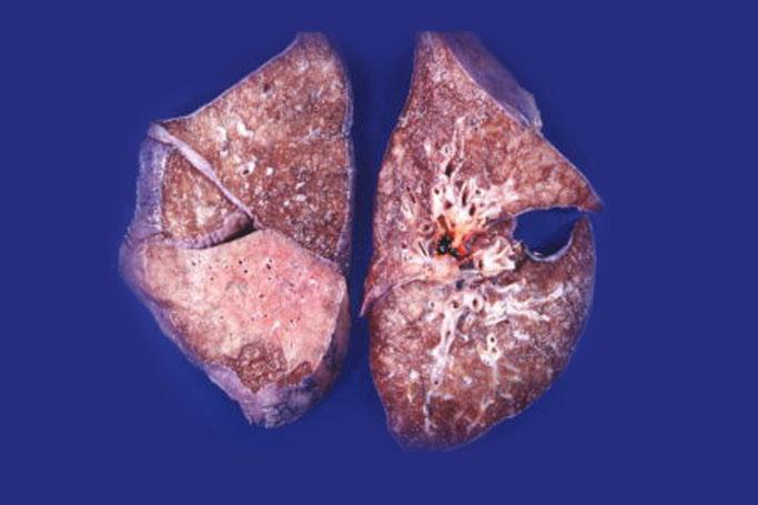 Как развивается бронхолегочный амилоидоз