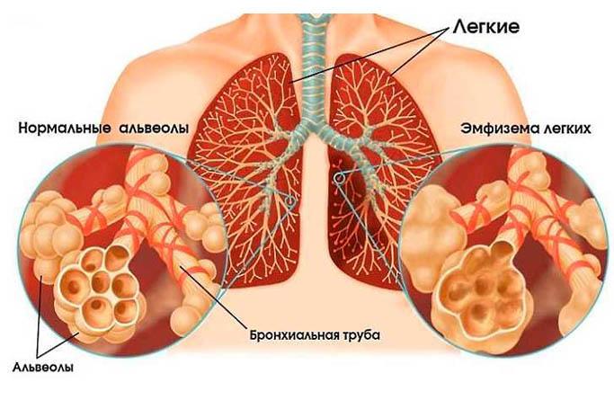 Центрилобулярная эмфизема - методы лечения