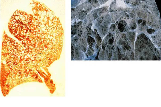 Особенности центрилобулярной эмфиземы