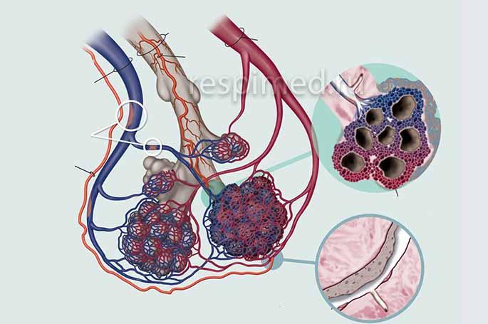 Как развивается центрилобулярная эмфизема