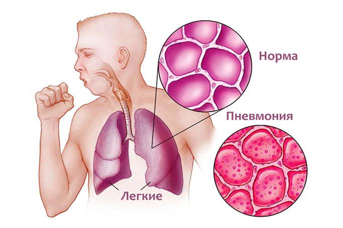 Как лечить очаговую пневмонию