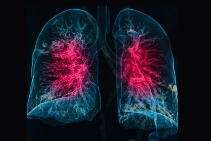 Прогноз лечения пневмонии