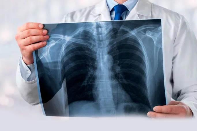 Очаговая пневмония - особенности