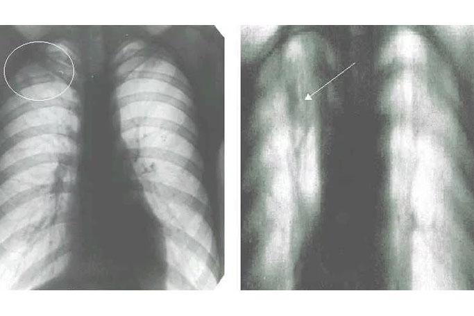 Симптомы очагового туберкулеза