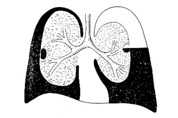 Как правильно диагностировать болезнь