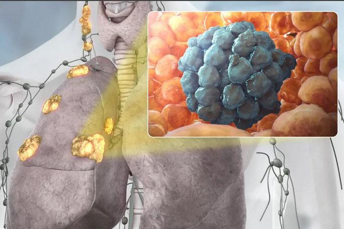 Как развивается рак в легких