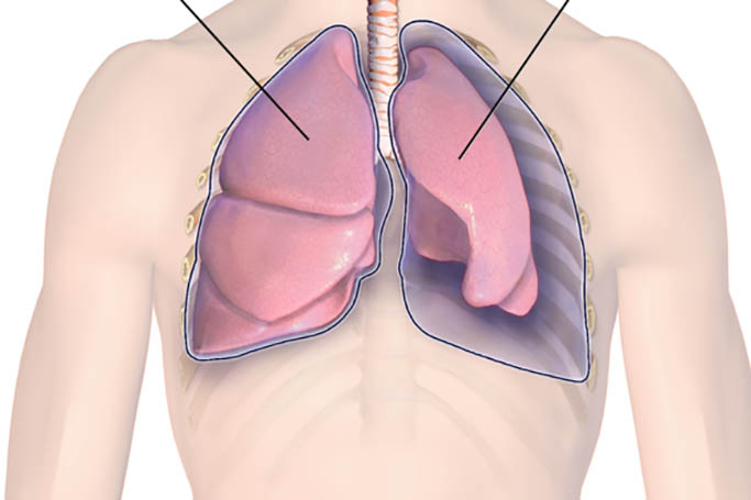 Особенности пневмоторакса