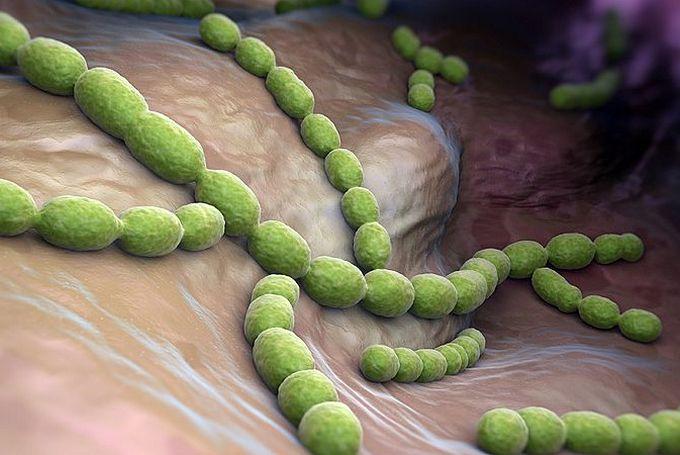 Пневмококковая пневмония - что это