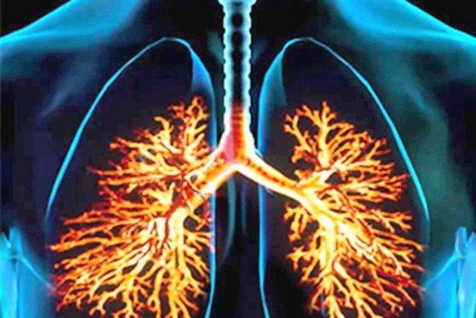 Что такое пневмокониоз