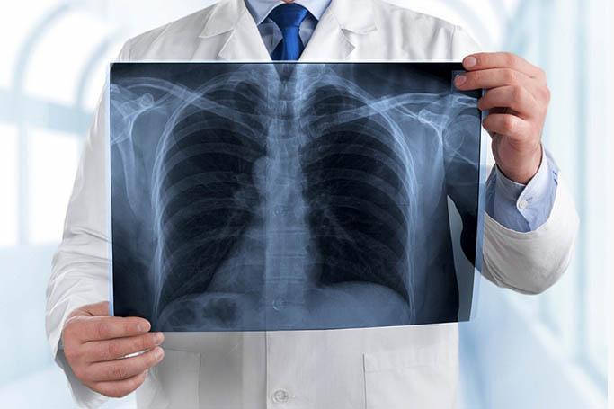 Пневмосклероз и его особенности