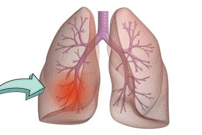 Пневмосклероз - особенности