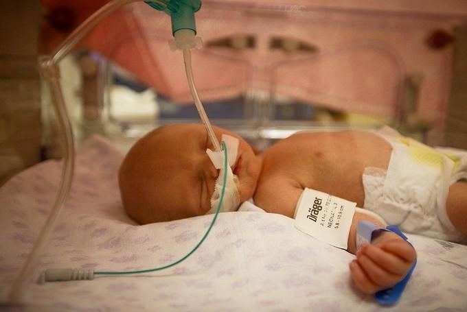 Причины развития пороков легких у детей в раннем возрасте