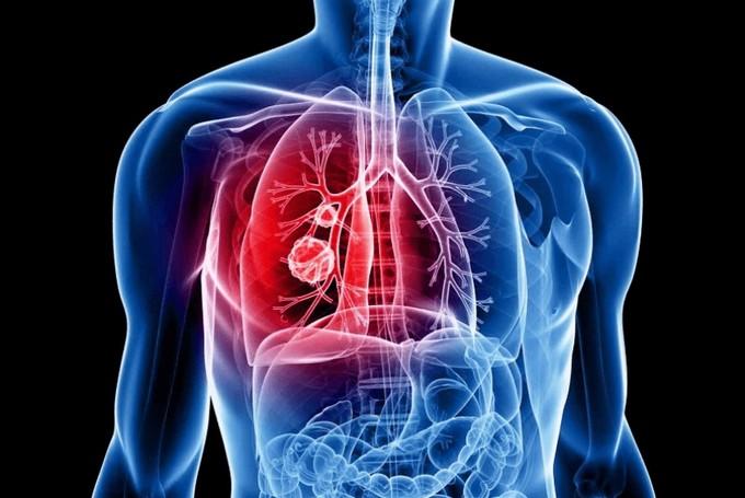 Причины, диагностика и лечение рака легких