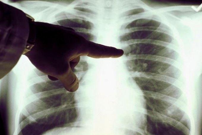 Рак легкого - диагностика и лечение