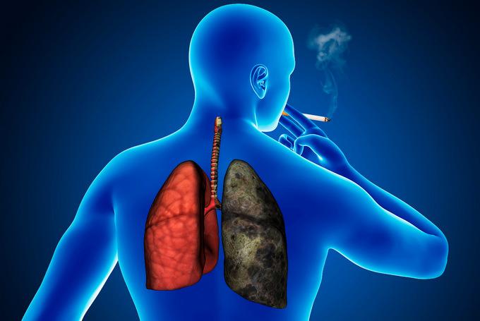 Методы диагностики рака легких