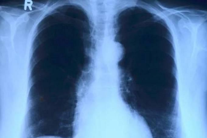 Рак легких - причины, симптомы, диагностика и лечение