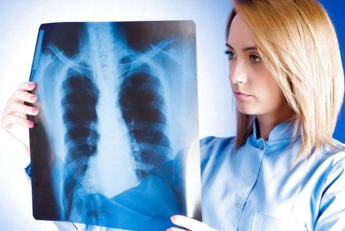 Рак средостения - диагностика и лечение