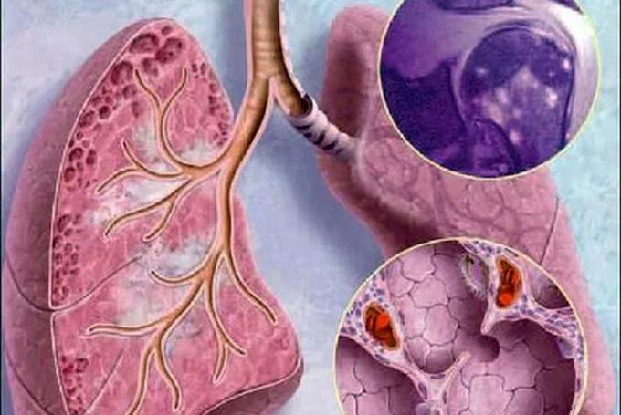 Причины возникновения саркоидоза легких