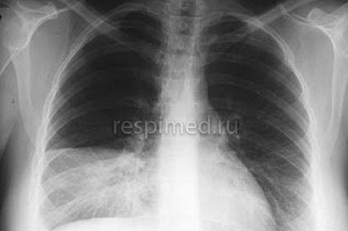 Как лечить сегментарную пневмонию