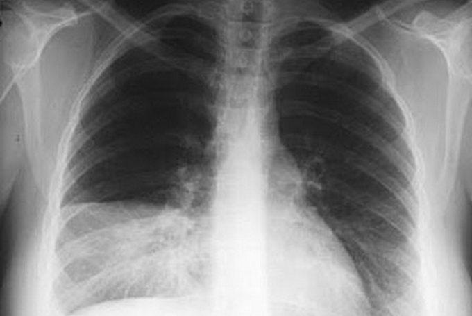 Симптомы сегментарной пневмонии