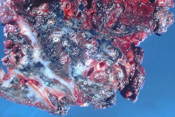 Методы лечения силикатозов