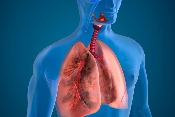 Диагностика, лечение и симптомы силикотуберкулеза