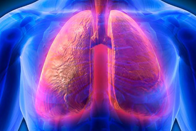 Симптомы, диагностика и лечение стафилококковой пневмонии