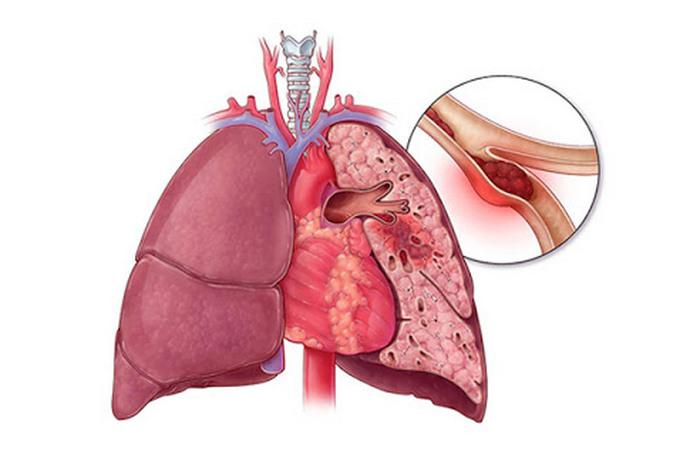 Что такое тромбоэмболия легочной артерии