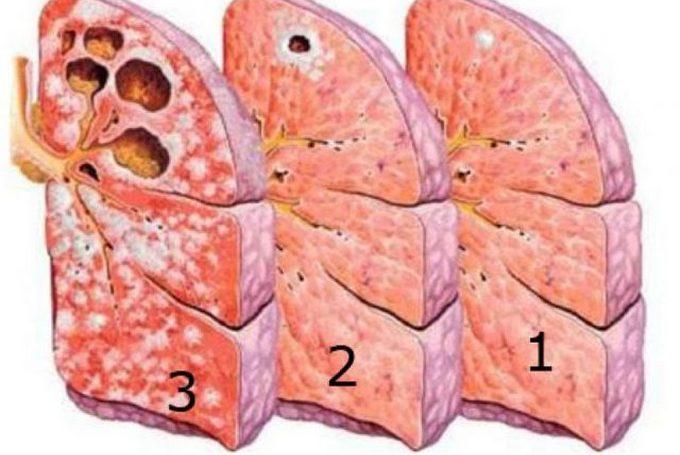 Стадии туберкулеза легких