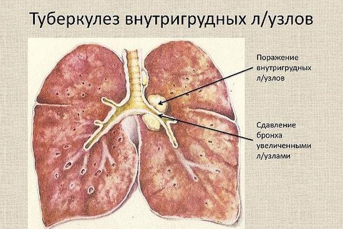 Что такое туберкулез внутригрудных лимфатических узлов