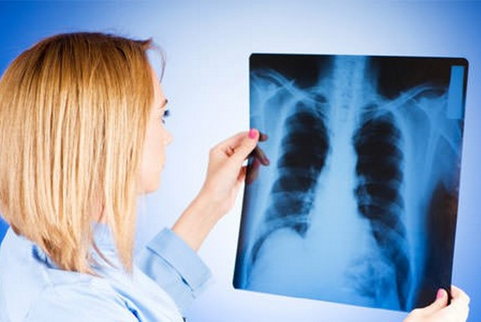 Туберкулез внутригрудных лимфатических узлов - методы диагностики и лечения