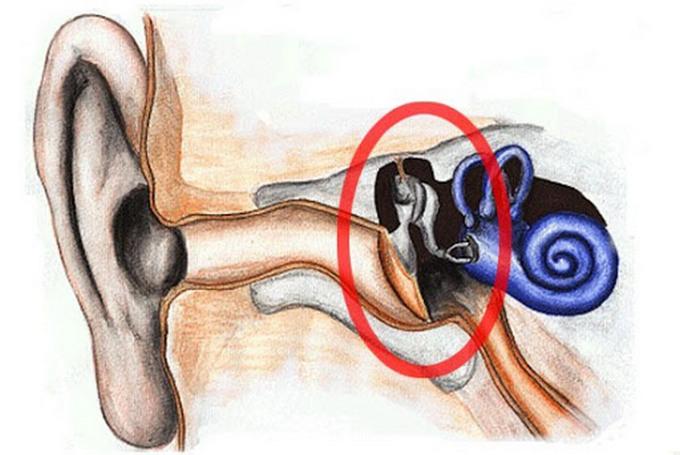 Баротравма уха - диагностика и лечение