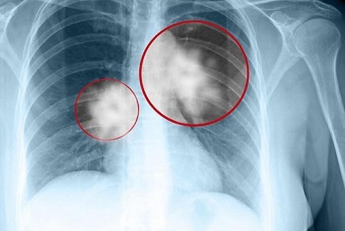 Что такое центральный рак легкого