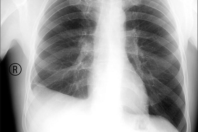 Что такое туберкулезного плеврита
