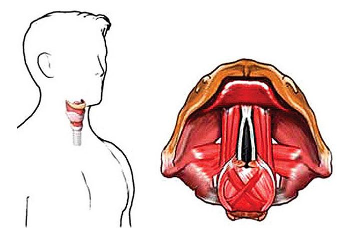 Парезы гортани - особенности и лечение