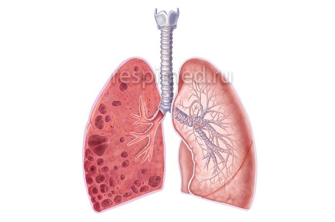 Диффузный пневмосклероз - особенности
